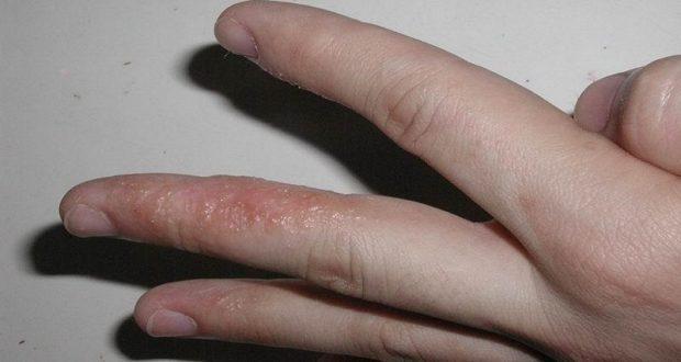 Волдыри на пальцах рук