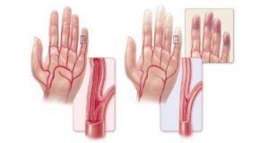 Болезнь Бюргера или облитерирующий тромбангиит: симптомы и лечение
