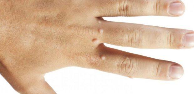 20 способов быстрого избавления от бородавок на руках