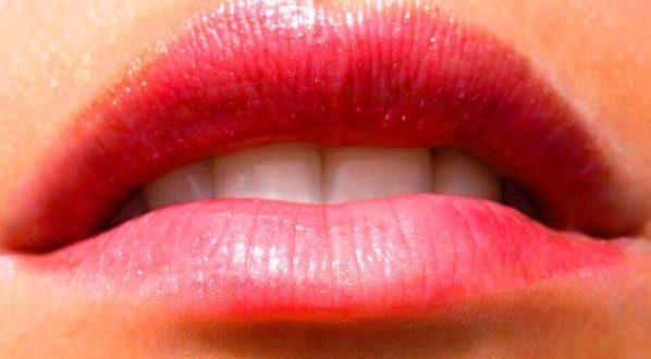 молочница на губах и как она проявляется