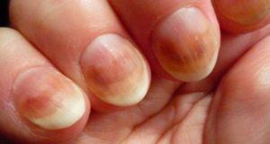 Как проявляется кандидоз ногтей