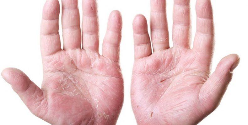 Кандидоз пальцев рук