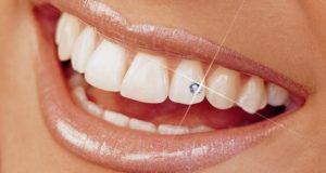 Украшения для зубов